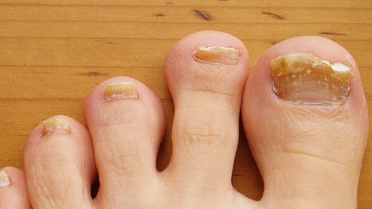 Home remedies for brittle nails | Treatment for brittle nails - YouTube