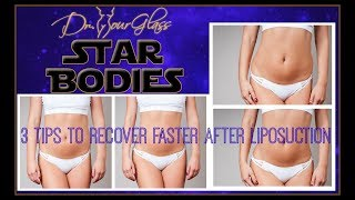 Tips To Recover Faster After Liposuction