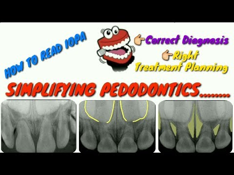 #IOPA What is dental xray?||intraoral periapical radiograph||IOPA in pedodontics #MedicalRadiology