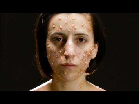 Thumbnail: What Deadly Diseases Look Like On Your Body