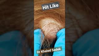 Cyst Removal dr khaled sadek #cystremoval #shorts