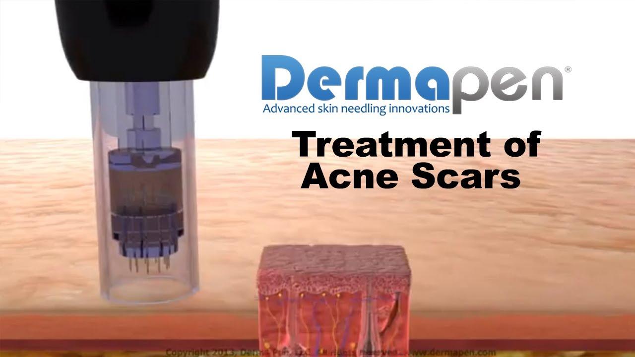 Improve Acne Scars | Dermapen® Microneedling Treatments