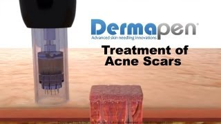 MicroNeedling for Acne Scars - Dermapen® Treatment