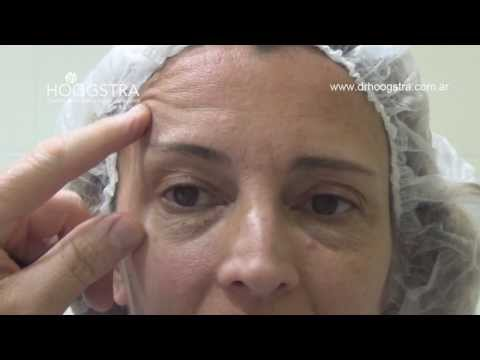 Cirugía de Párpados y Bolsas Blefaroplastía + Láser de Co2 (14010)