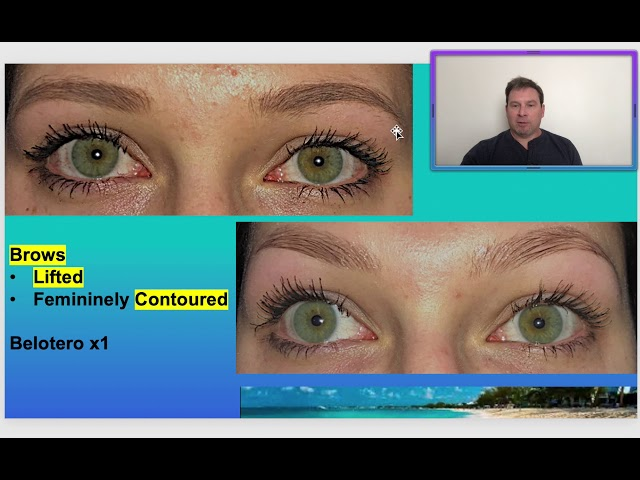 Dr. Burroughs discusses filler brow lifting and contouring