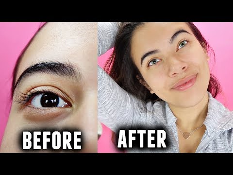 Permenant eye color change surgery... (My journey of wanting it and why I chose not to)