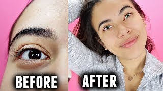 One of Adelaines Camera Roll's most viewed videos: Permenant eye color change surgery... (My journey of wanting it and why I chose not to)