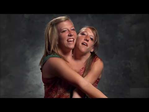 Две сестры в одном теле