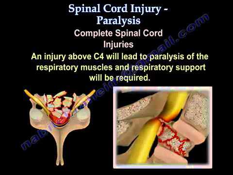 spinal cord injury case Brain / spinal injury aj case management provide services to clients and their families who have suffered life changing accidents,  spinal cord injury.