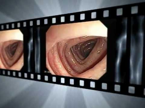 cancer de colon y hemorroides