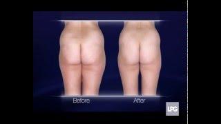 видео Lpg (лпж, лпг) массаж: что это такое, фото до и после, отзывы