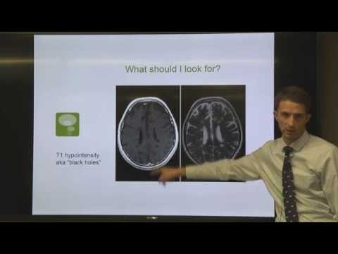 OhioHealth Multiple Sclerosis Lecture-Understanding Your MRI