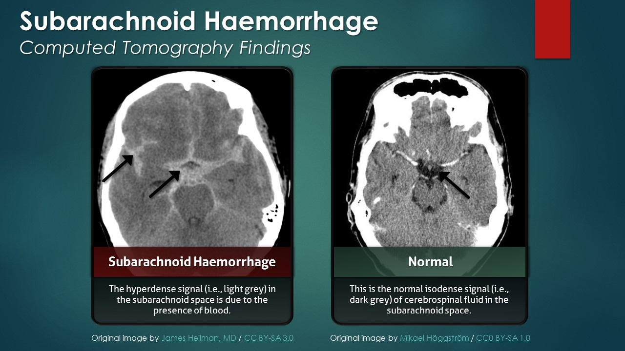 Subarachnoid Hemorrhage (SAH): Computed Tomography Scan Findings