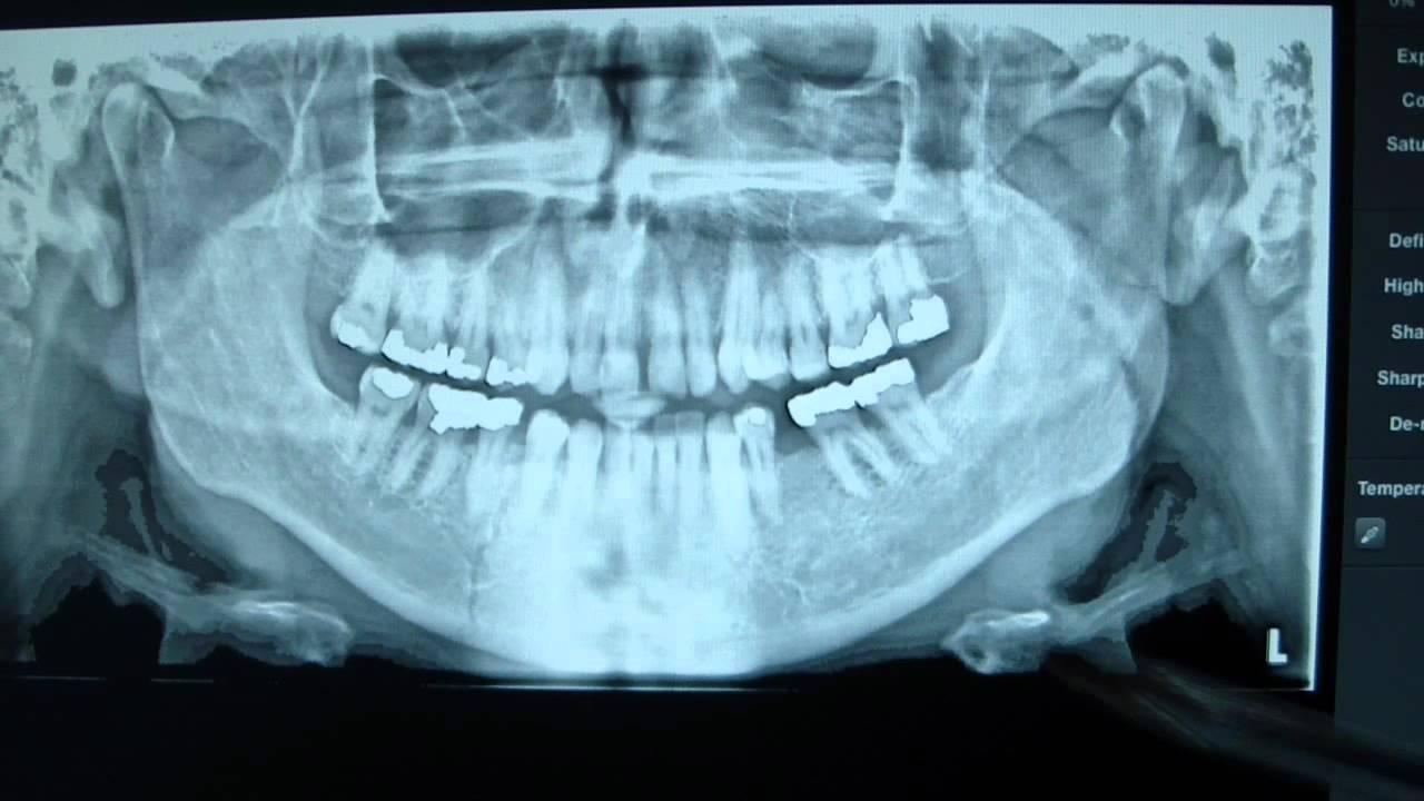 Mandible Fracture Panoramic Radiograph