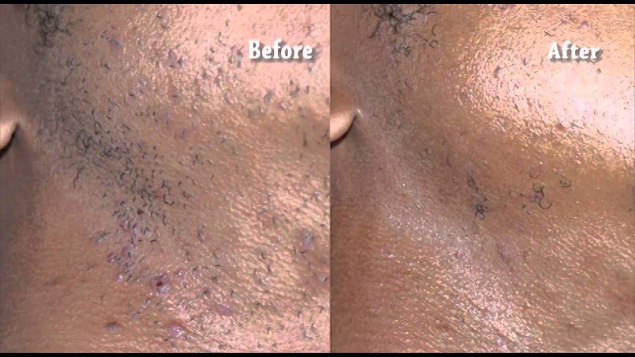 Laser Hair Removal Is An Effective Way To Get Rid Of Ingrown Hairs