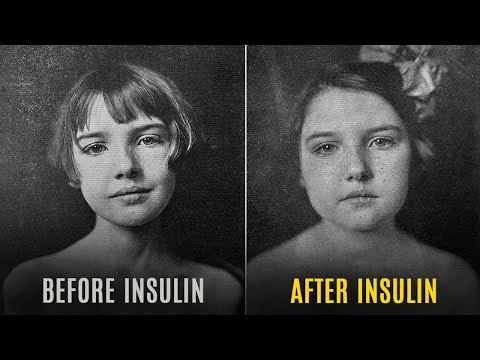 the-first-use-of-insulin-was-in-1922-and-it-has-an-amazing-story-behind-it!