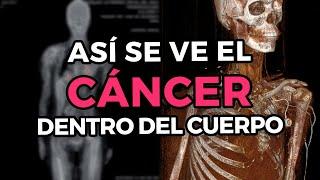 ¿Cómo es que se detecta y se ve el cáncer dentro del cuerpo? - PET CT Scanner