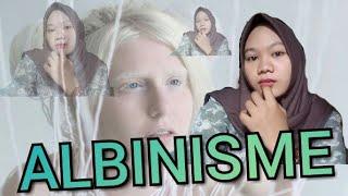 Awalnya Gadis Albino Ini Sering Di hina si Muka Pucat.Tapi Saat Matanya Di buka Orang SyokTakPercaya.