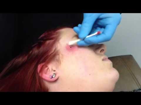 Dermal Piercing on cheek