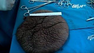 VTC14 Phẫu thuật thành công