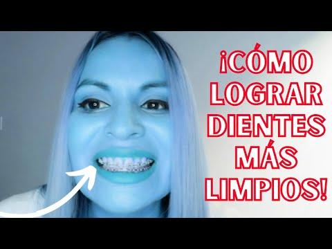 ¡cÓmo-lograr-dientes-mas-limpios-con-o-sin-ortodoncia!-😬👌🤩
