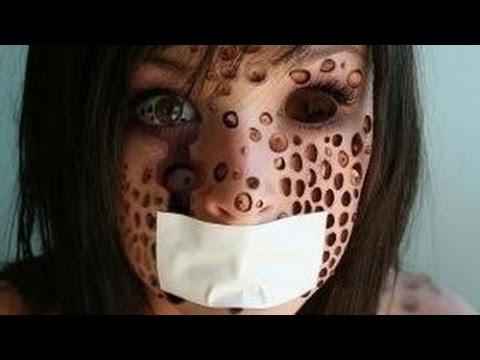 【閲覧注意】 「梅毒」が恐ろしすぎる! 近年日本で増加している 衝撃の病気に世界が震えた!