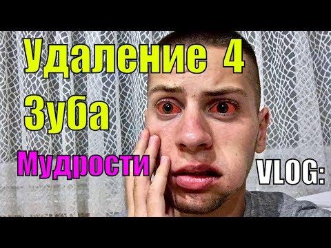 VLOG / После Удаления Зуба Мудрости / Сложное Удаление