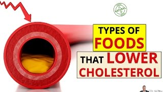 → 3 Best Types Of Foods That Are Guaranteed to Lower Your Cholesterol - by Dr Sam Robbins