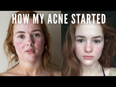 HOW MY ACNE STARTED