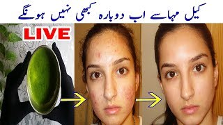 Its Not a Joke | Remove Pimples and Acne Permanently | Skin Care Tips by Aisha