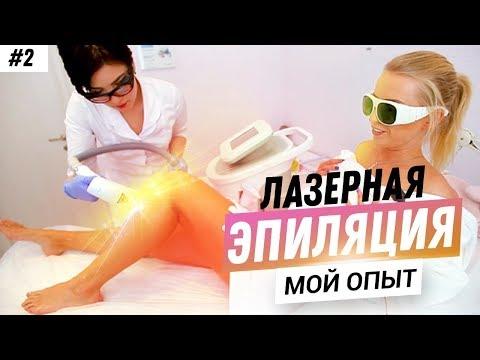 Лазерная эпиляция ЧЕСТНЫЙ ОТЗЫВ! МОЙ ОПЫТ ЭПИЛЯЦИИ ВОЛОС! УДАЛЕНИЕ ВОЛОС ДИОДНЫМ ЛАЗЕРОМ Epileo.ru