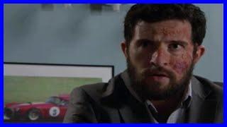 Emmerdale spoilers: Ross Barton for shock MURDER twist as he vows to get revenge on acid