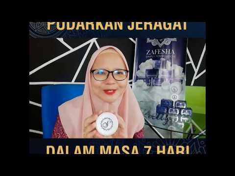 Pudarkan Jerawat Dalam 7 Hari By Siti