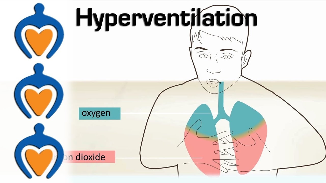Hyperventilation - Causes and treatment of ...