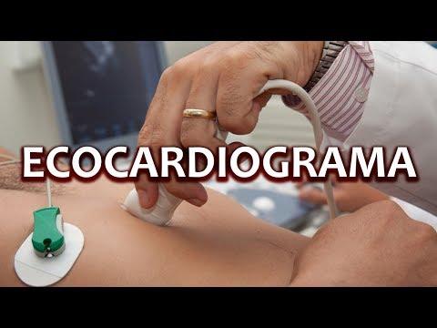 Видео Como é o exame de ecocardiograma