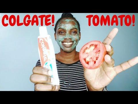 APPLY  COLGATE & TOMATO ON FACE OVERNIGHT.