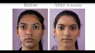 How to get rid of acne  l Before & After treatment