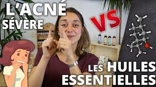L'ACNÉ SÉVÈRE - Remède naturel aux huiles essentielles