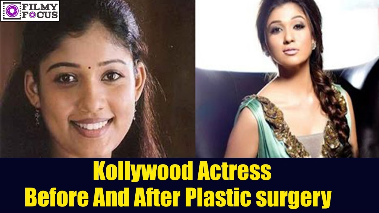 kollywood top actress plastic surgery before and after    nayanthara