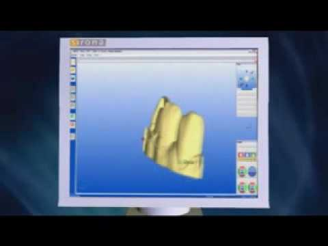 CEREC - high precision teeth design