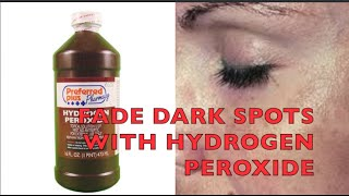HYDROGEN PEROXIDE for FADING Brown Spots, Acne Scars, Sun Damage...