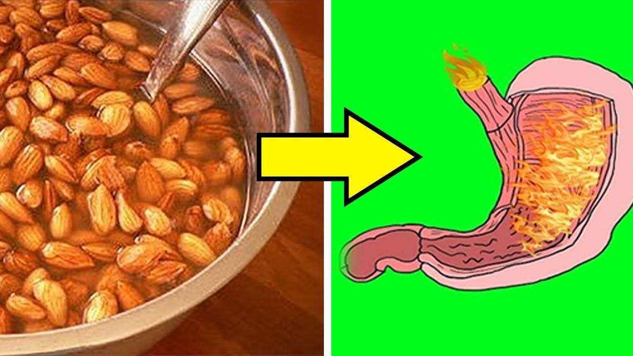 12 alimentos prohibidos para la gastritis, la acidez, las agruras y el reflujo gastroesofagico
