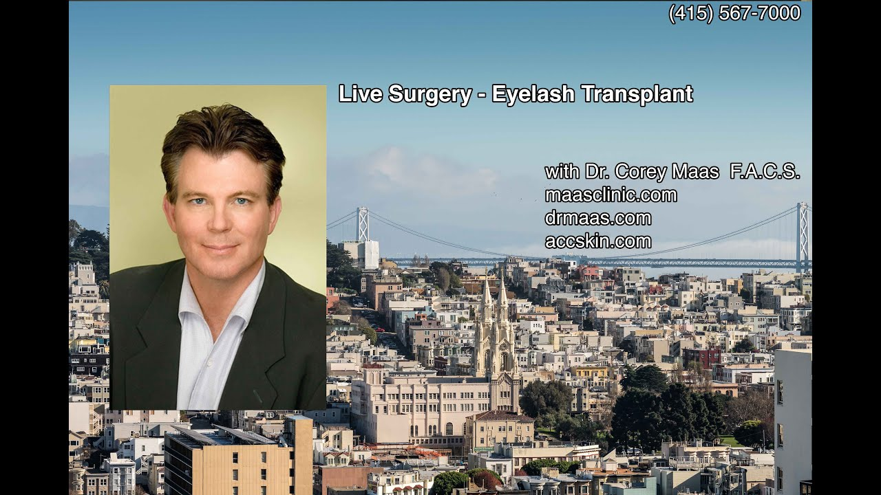 Eyelash Transplant San Francisco | Eyebrow Restoration Bay Area