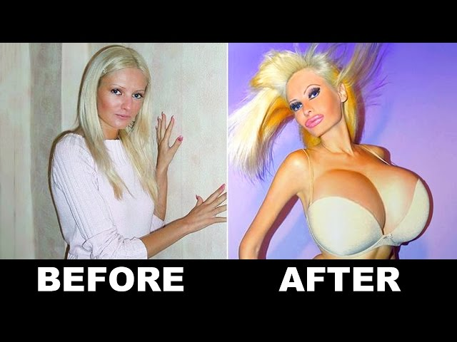 10 Extreme Plastic Surgery Transformations