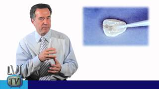 reattaching a fractured tooth 20 years later lvi tv episode 35