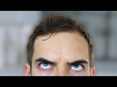 FIX MY FOREHEAD (YIAY #333)