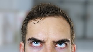 FIX MY FOREHEAD (YIAY #333) thumbnail