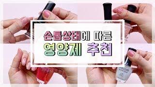 [손톱영양제]손상된 손톱에 알맞는 영양제 추천(네일 전…