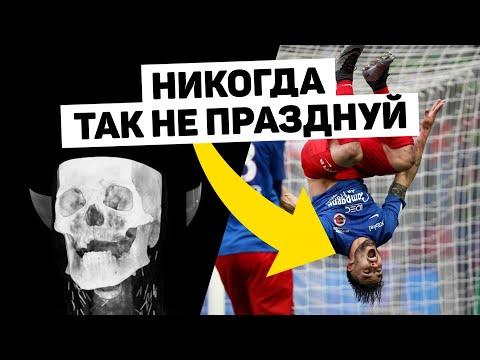 ЗАБИЛ ГОЛ И УМЕР. Серьезные травмы при праздновании голов. Футбольный топ. @120 ЯРДОВ