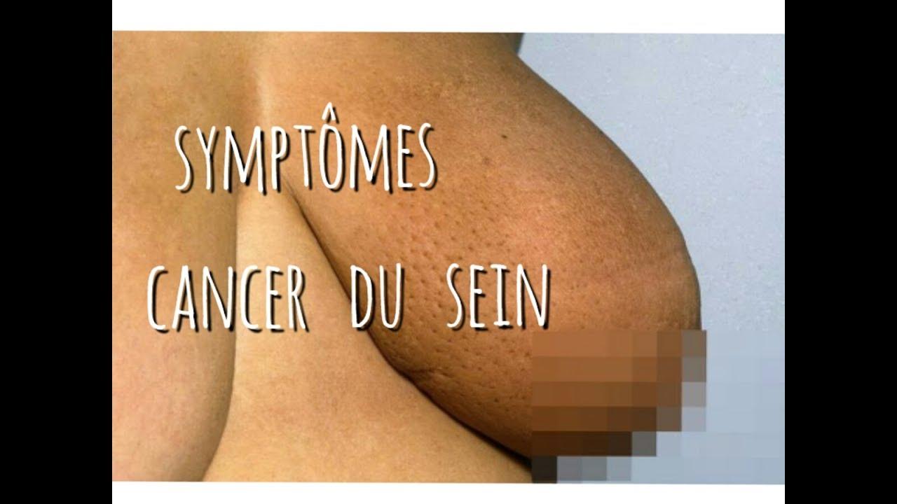 symptome du cancer du sein